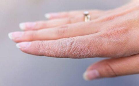 Síndrome de «dedos congelados», el nuevo síntoma del coronavirus